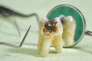 Tooth infected with tooth decay.