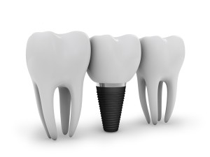 dental implant innovation
