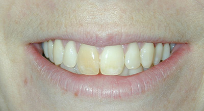 Before whitening and porcelain crowns