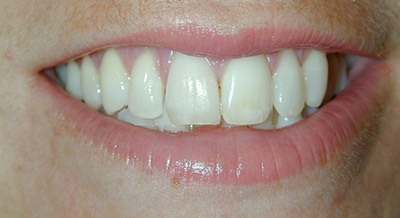 After whitening and porcelain crowns
