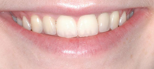 multiple teeth implants after