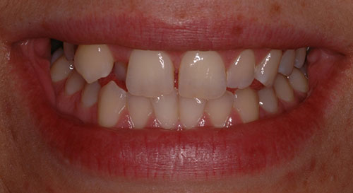 Smile before orthodontic treatment