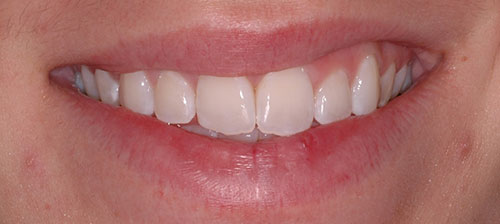 After orthodontic treatment for rotated teeth
