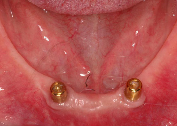 Two dental implants