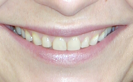 Worn teeth before crowns and veneers