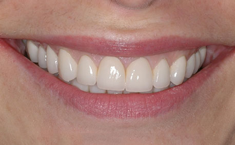 After crowns and veneers