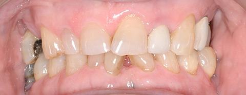 Worn and misaligned teeth before crowns and veneers