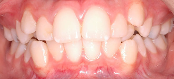 Patient's teeth before orthodontics