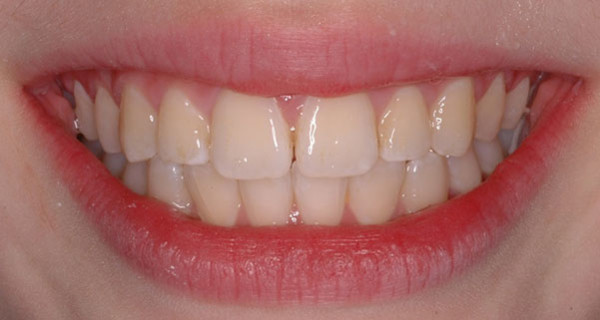 Patient's teeth after orthodontic treatment