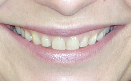 crowns and veneers 02 1