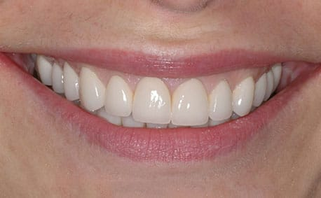 crowns and veneers 02 2