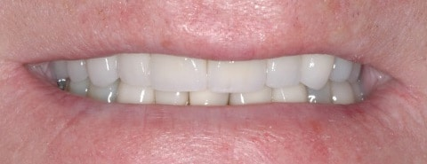 crowns and veneers 03 2