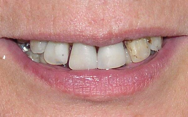 crowns veneers implants 01
