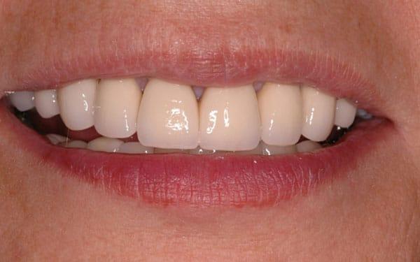 crowns veneers implants 03