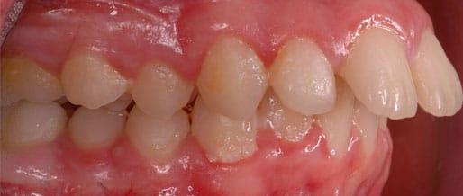orthodontics 03 cropped