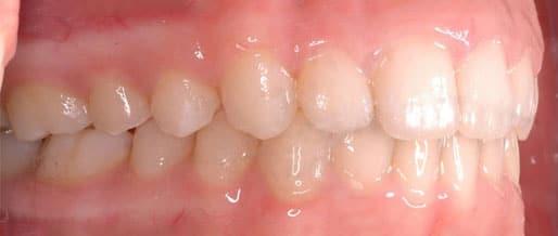 orthodontics 04 cropped