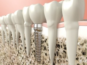 dental implants for the world congress on dental and oral health 5d554bfa2378f