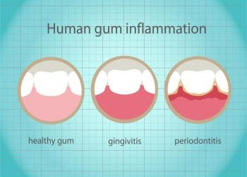 gum disease destroys smiles