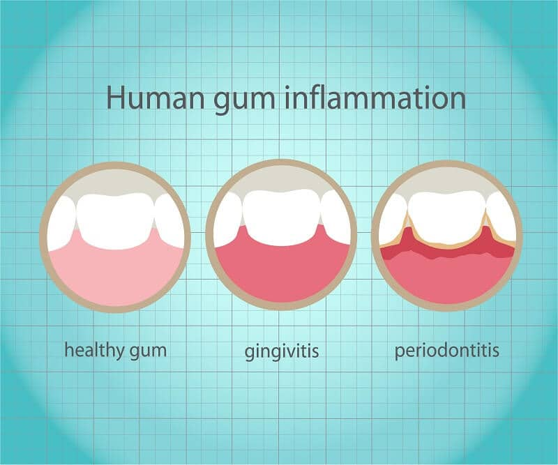 gum disease destroys smiles