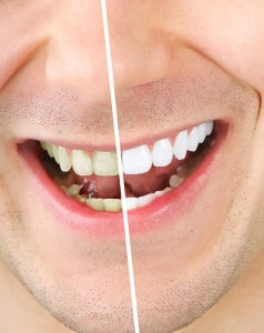 three ways to have a brighter smile and none of them are a whitening procedure 5d554c66d45f7