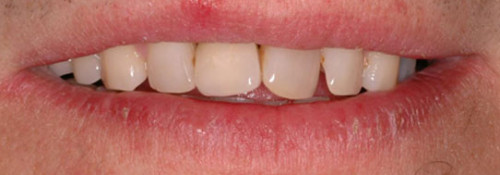 Single-Tooth Anterior Implant