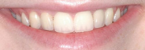 Multiple Teeth Front Implants