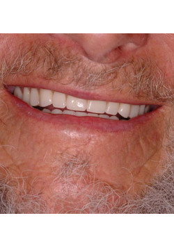 Three Implant Denture Support