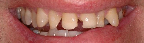 Crowns & Veneers Restoration