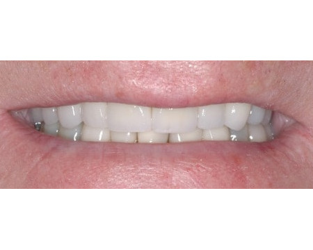 Worn & Misaligned Teeth