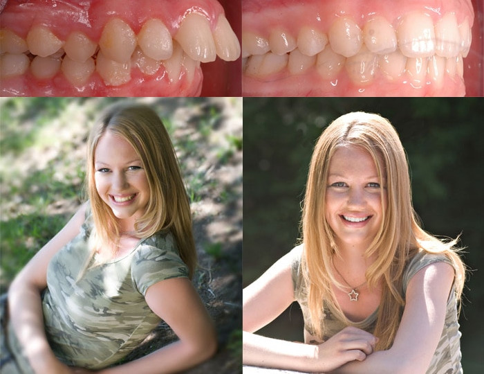 Fixed Overbite With Orthodontics