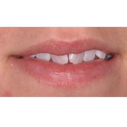 Rotated Teeth