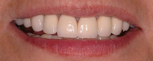 Crowns, Bonding, Veneers & Implants