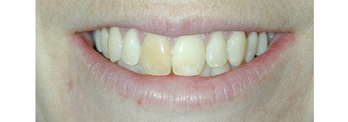 Zoom Whitening & Porcelain Crowns